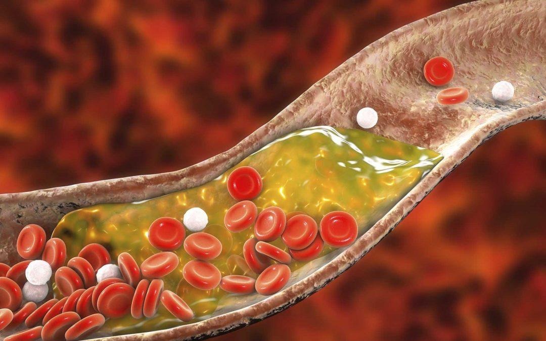 Colesterolo alto: guida completa