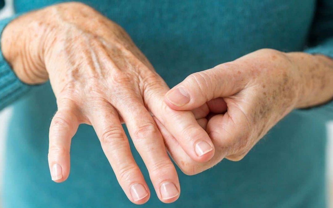 Come curare l'artrite?