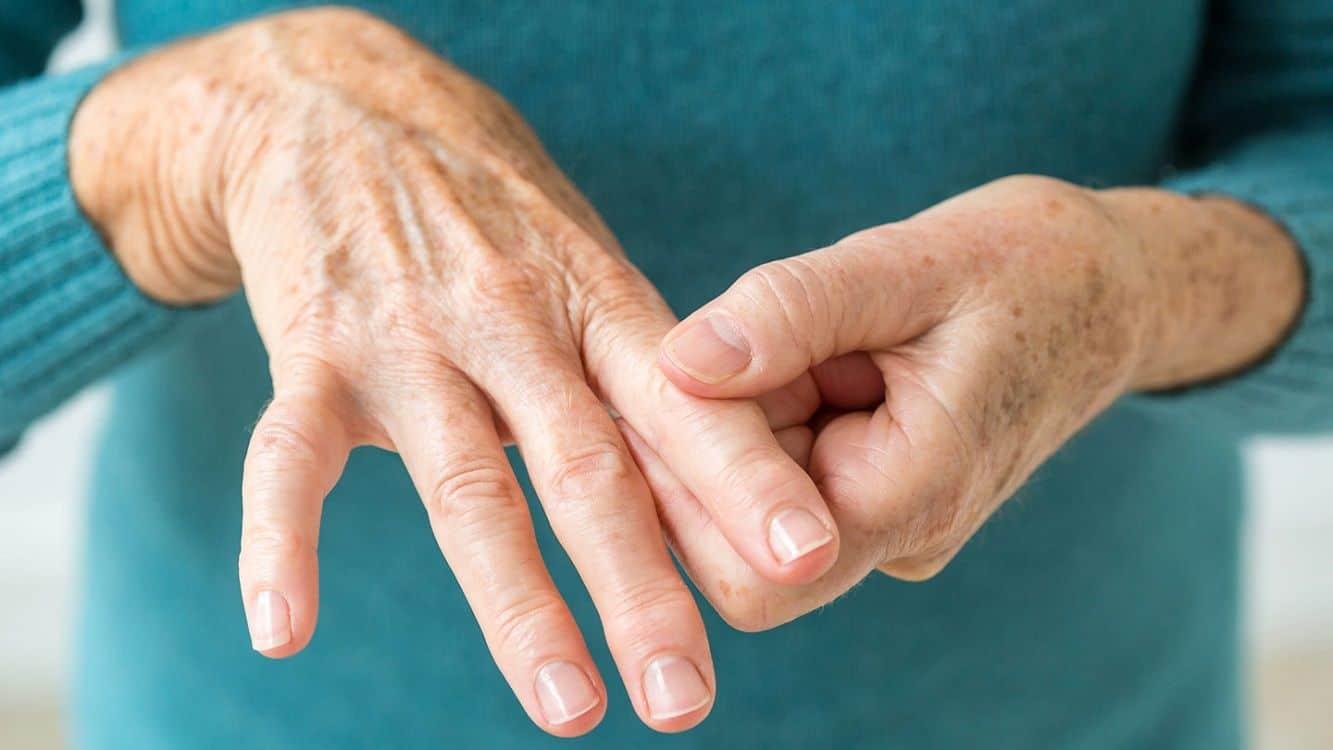 Come curare l'artrite? - AlmaPhysio - Fisioterapia Milano