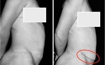Diastasi: chirurgia e sue conseguenze