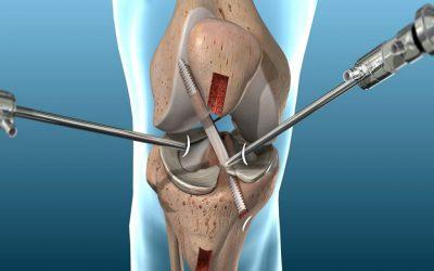 Operazione crociato anteriore