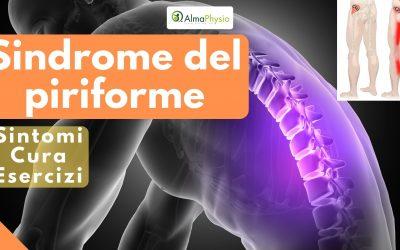 Sindrome del piriforme: sintomi, cura, esercizi